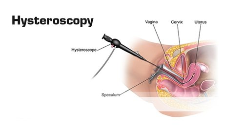 Hysteroscopy Treatment in Chennai